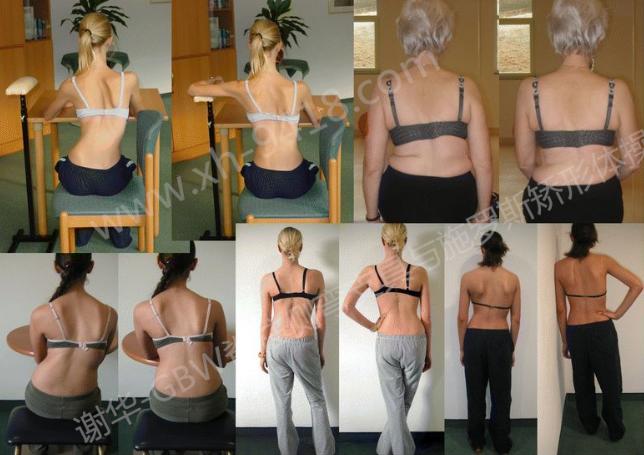 日常身体姿势与侧弯 侧弯支具相关文章 第2张