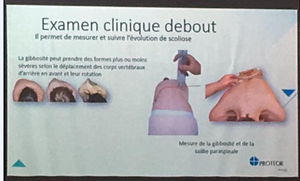 法国脊柱侧弯保守治疗中的支具情况 侧弯支具相关文章 第1张