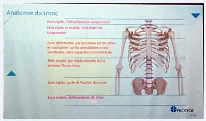 法国脊柱侧弯保守治疗中的支具情况 侧弯支具相关文章 第2张