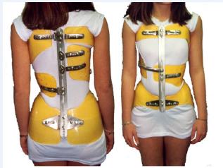 法国脊柱侧弯保守治疗中的支具情况 侧弯支具相关文章 第4张