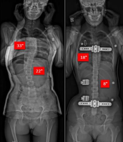 法国脊柱侧弯保守治疗中的支具情况 侧弯支具相关文章 第6张