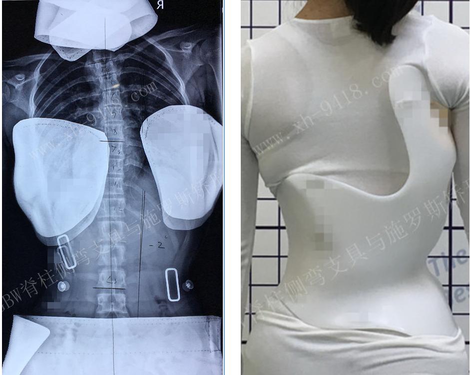 GBW支具矫正案例20190304   GBW脊柱侧弯支具矫正案例 第3张