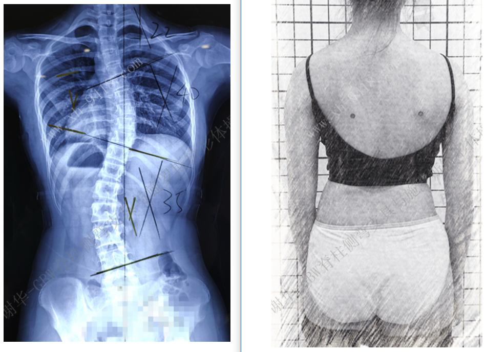 GBW支具矫正案例20190316 GBW脊柱侧弯支具矫正案例 第1张