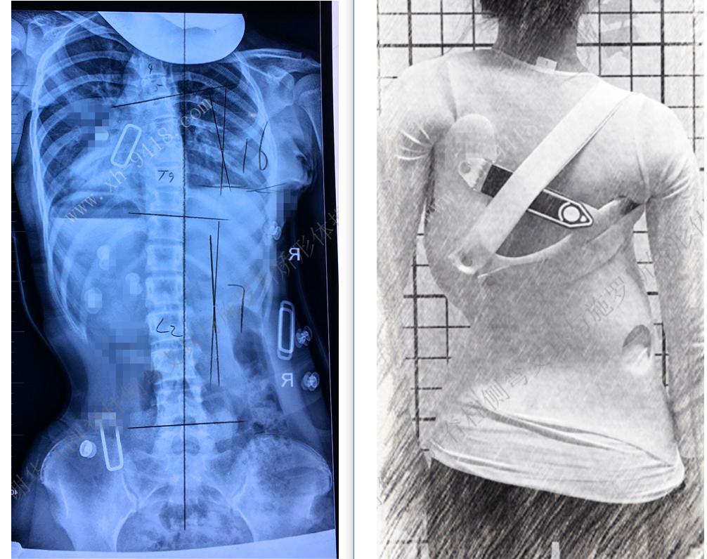 GBW支具矫正案例20190316 GBW脊柱侧弯支具矫正案例 第2张