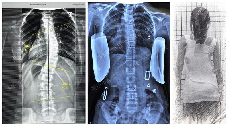 支具案例20190604 GBW脊柱侧弯支具矫正案例 第1张