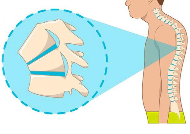 脊柱后凸畸形-休门氏症 侧弯支具相关文章 第2张