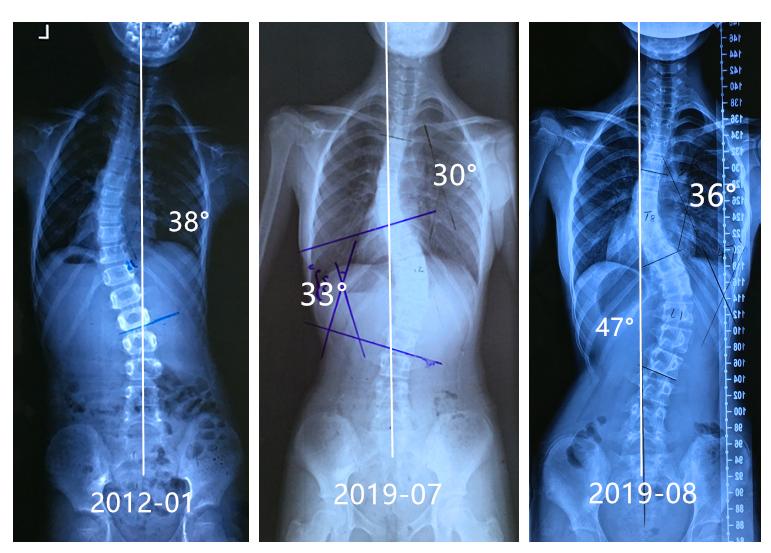 不良矫正导致侧弯加重案例20190823 侧弯支具相关文章 第1张