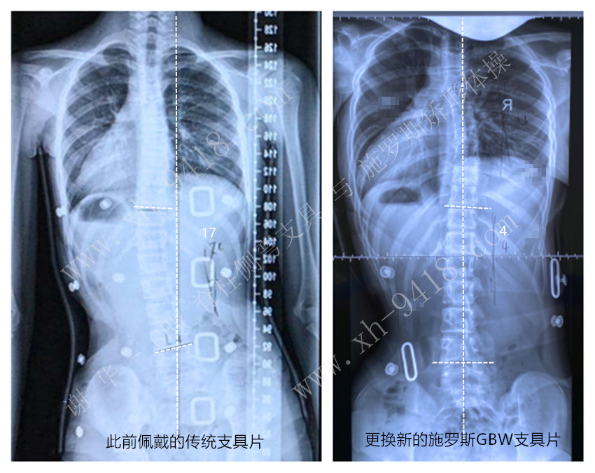 施罗斯GBW支具矫正案例20200523 GBW脊柱侧弯支具矫正案例 第1张