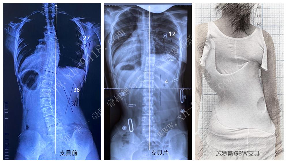 施罗斯GBW支具矫正案例20200523 GBW脊柱侧弯支具矫正案例 第2张