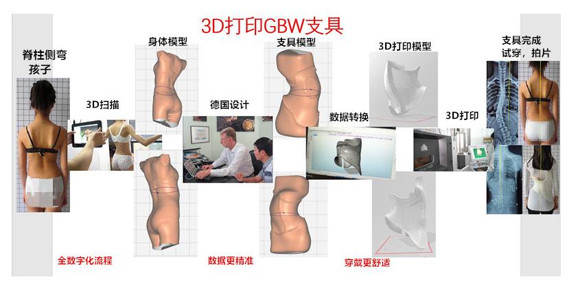 3D打印版GBW施罗斯支具接受定制 侧弯支具相关文章 第2张