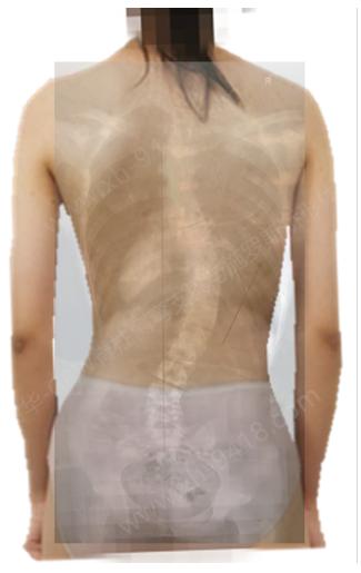 image.png 施罗斯体操呼吸控制训练 矫形体操相关文章